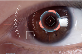 Biometría de Iris